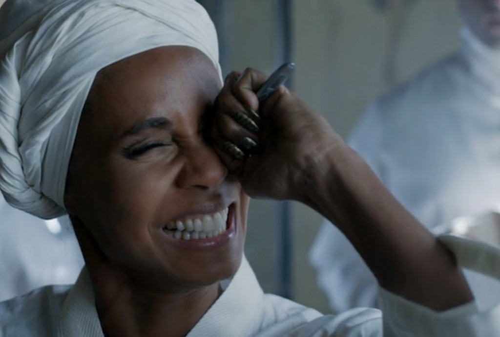 Fish Mooney uses one eye and eats the other!